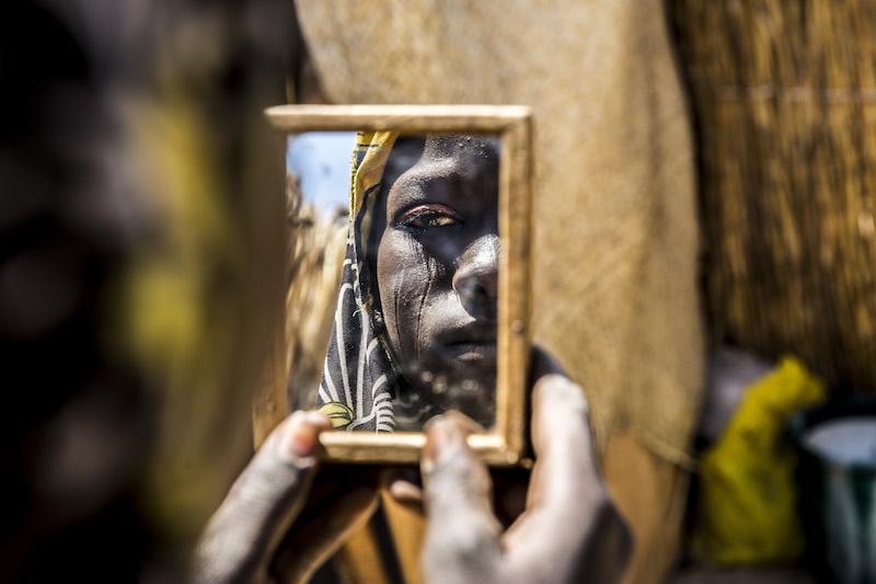Medici senza frontiere: dodici scatti d'autore per raccontare il mondo