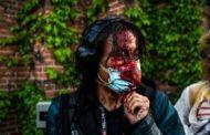 Proteste negli Usa, Ifj: «Basta prendere di mira i giornalisti»